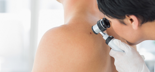 Benefits of Skin Cancer Treatment at Arizona Oncology